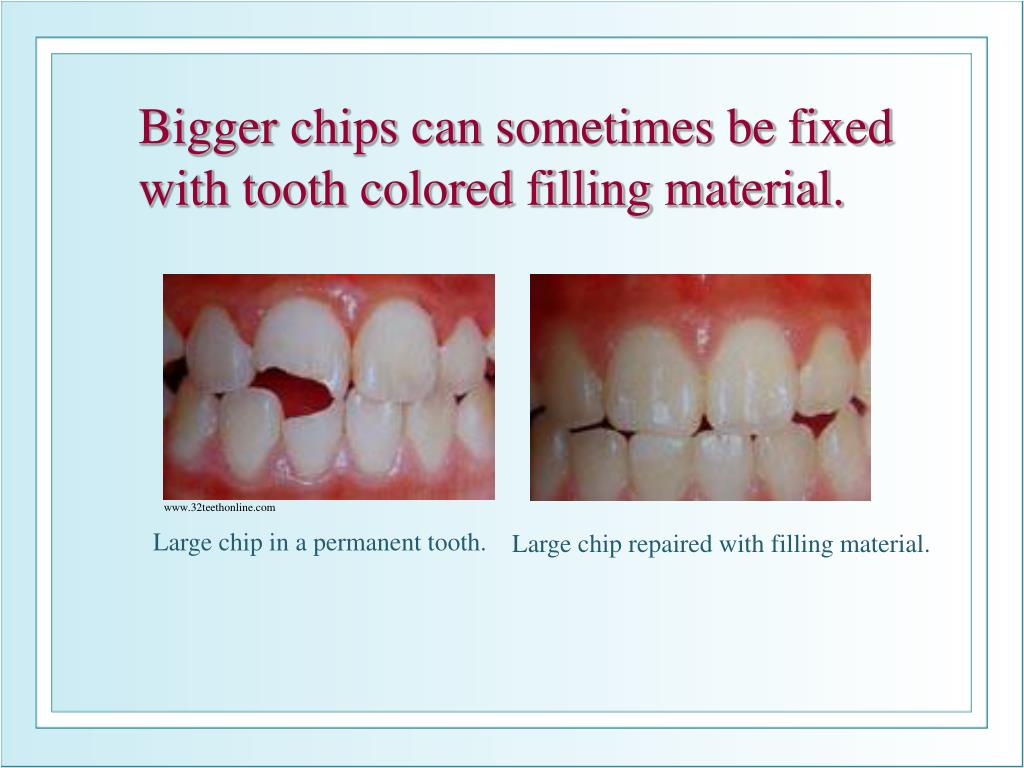 Bigger chips can sometimes be fixed with tooth colored filling material.