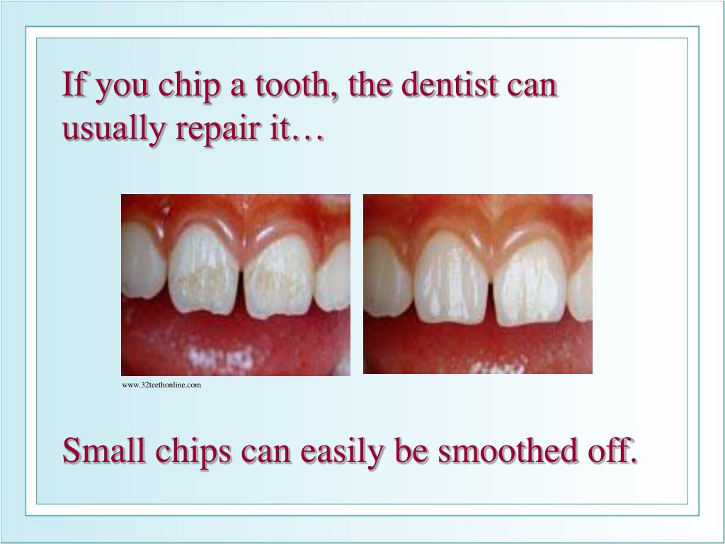 If you chip a tooth, the dentist can usually repair it…