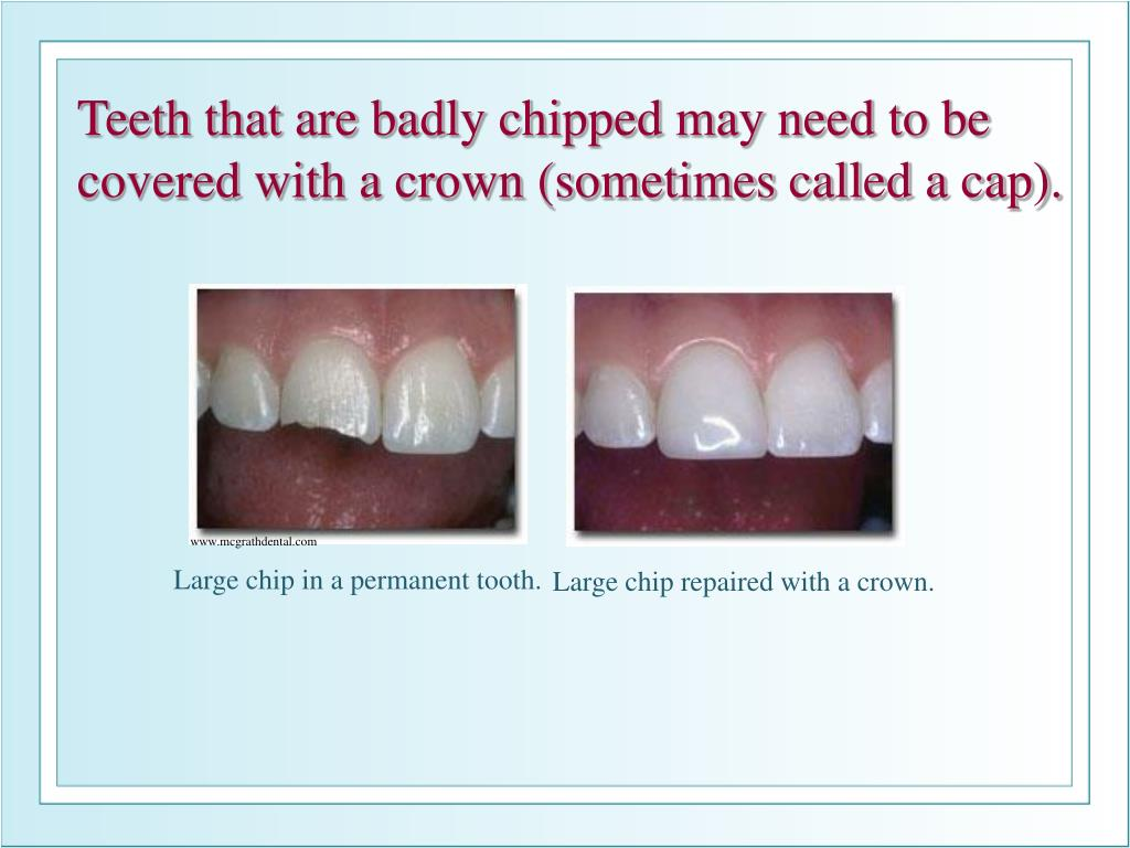 Teeth that are badly chipped may need to be covered with a crown (sometimes called a cap).
