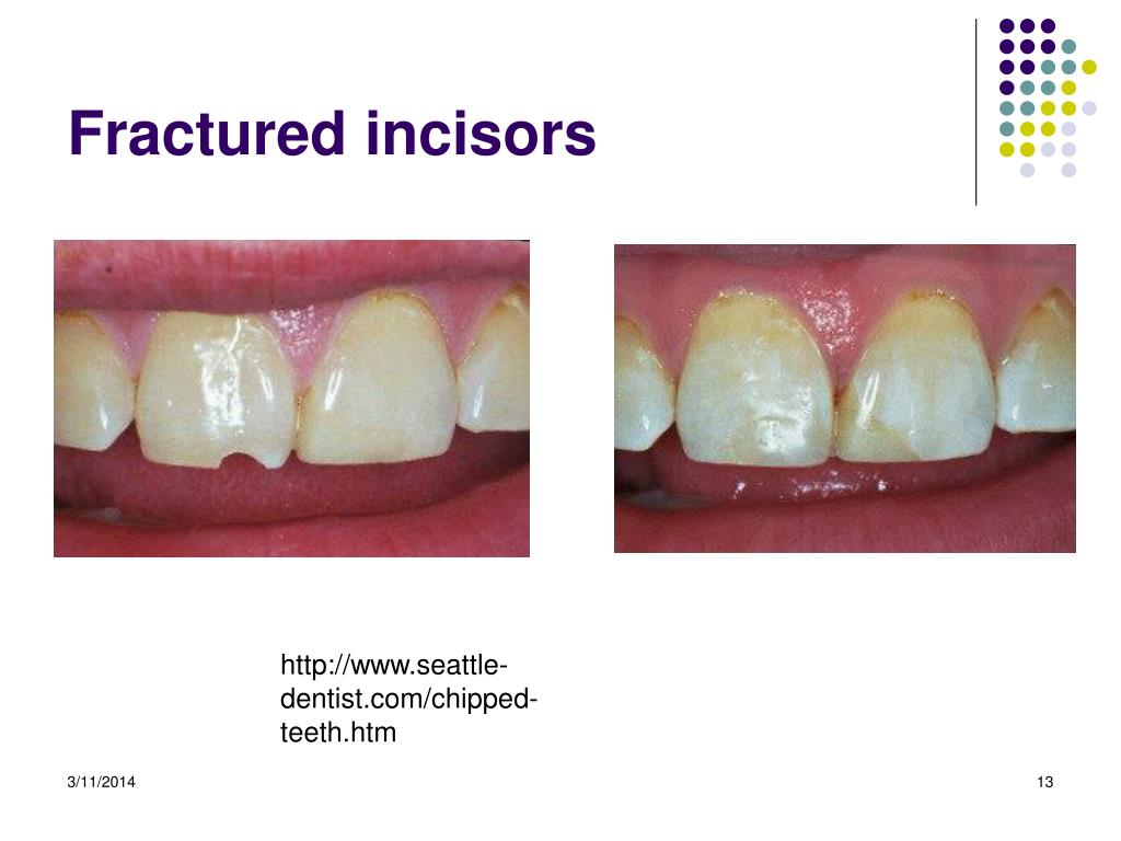 Fractured incisors