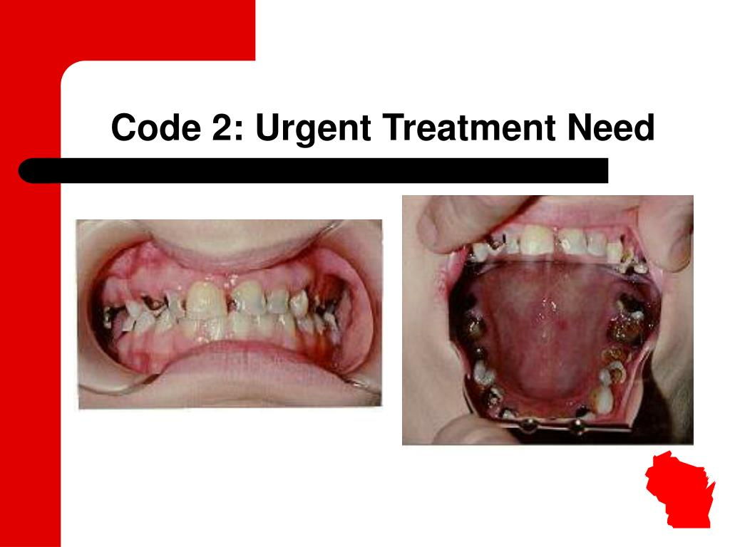 Code 2: Urgent Treatment Need