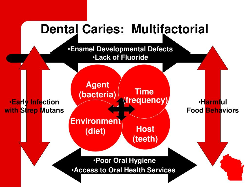 Dental Caries:  Multifactorial