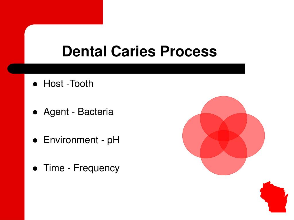Dental Caries Process