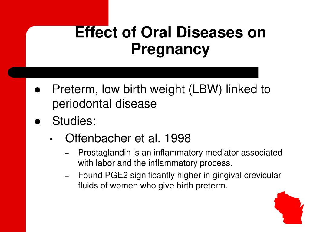 Effect of Oral Diseases on Pregnancy
