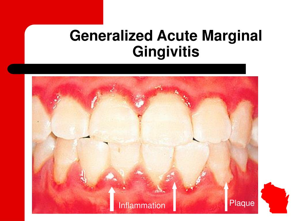 Generalized Acute Marginal Gingivitis