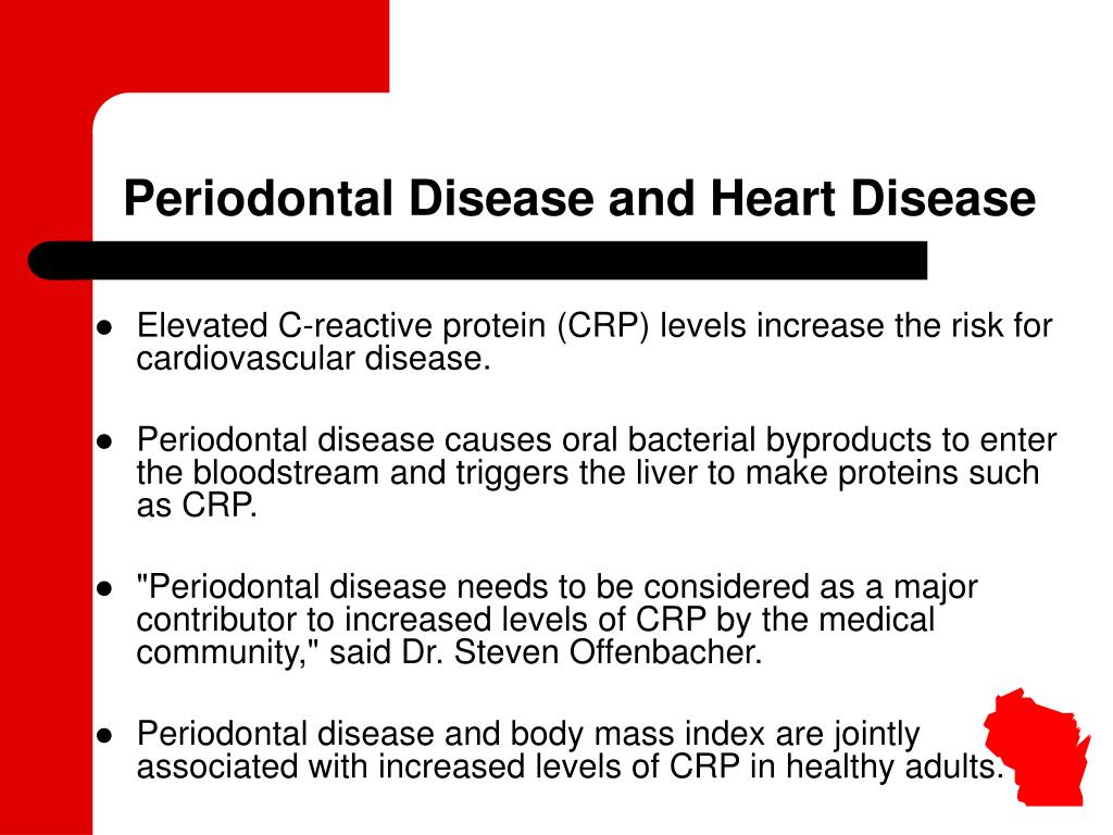 Periodontal Disease and Heart Disease