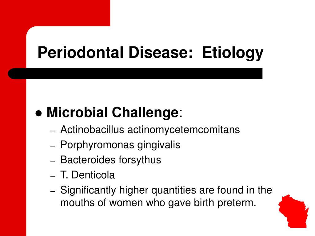 Periodontal Disease:  Etiology
