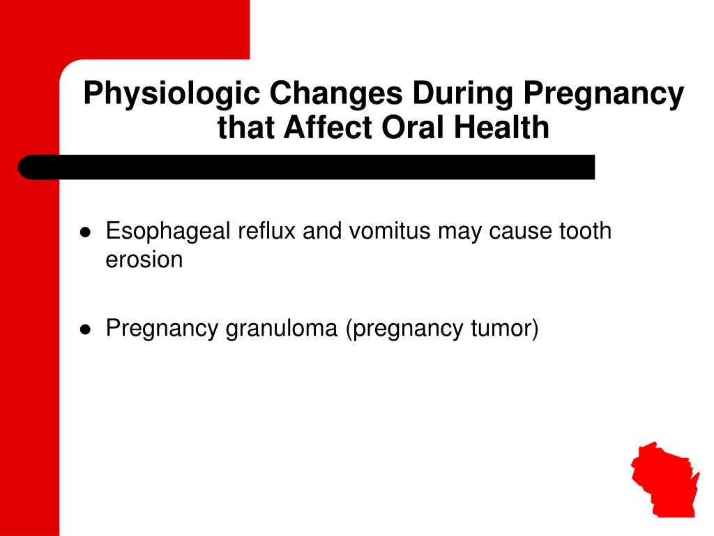 Physiologic Changes During Pregnancy that Affect Oral Health