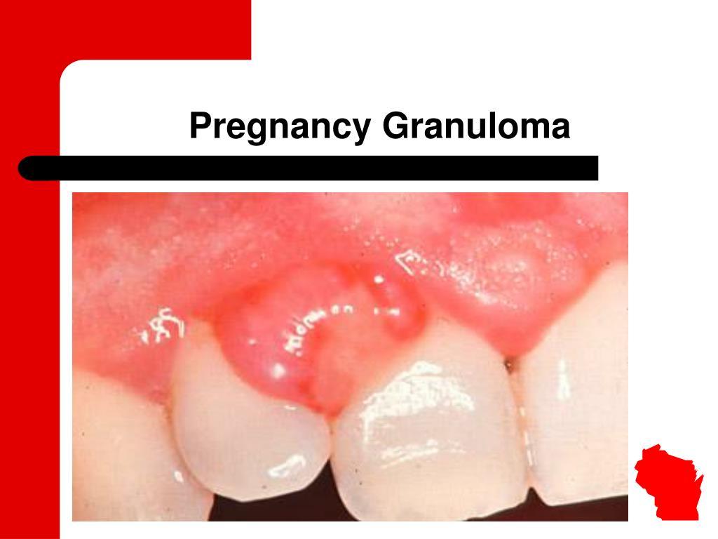 Pregnancy Granuloma