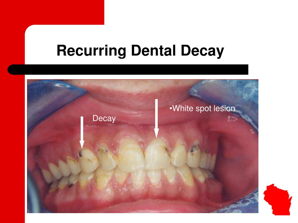 Recurring Dental Decay