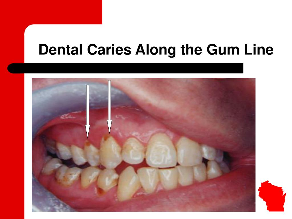Dental Caries Along the Gum Line