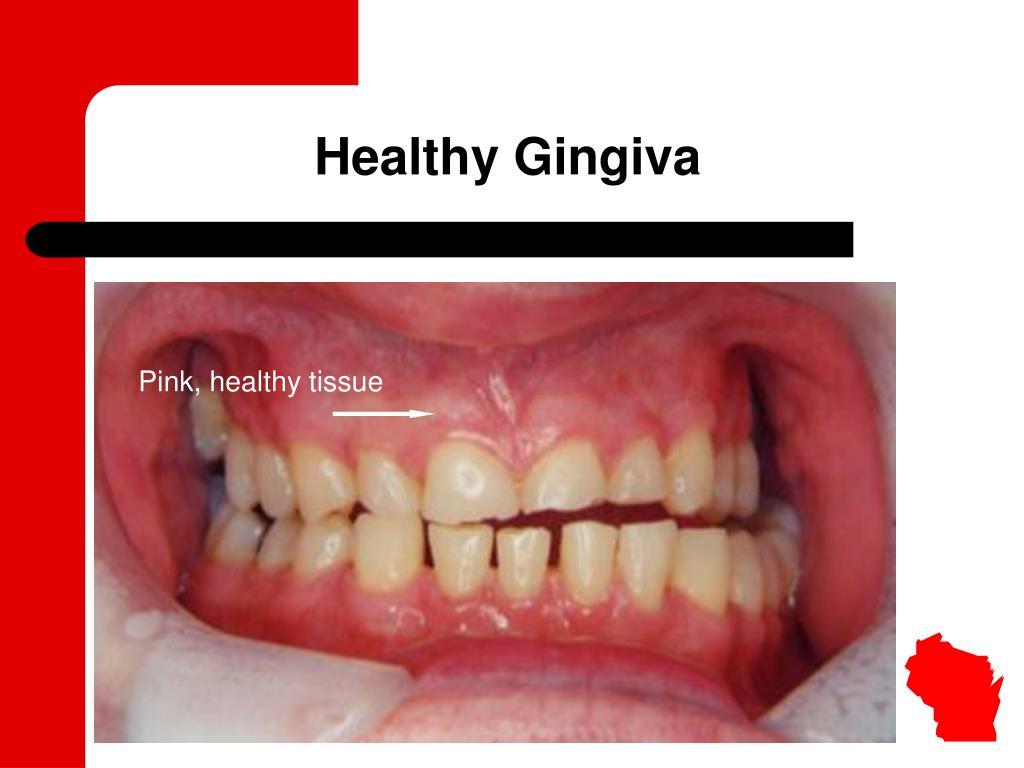 Healthy Gingiva