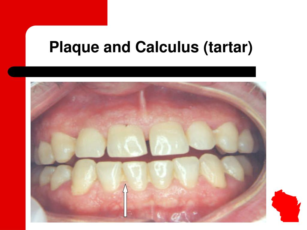 Plaque and Calculus (tartar)