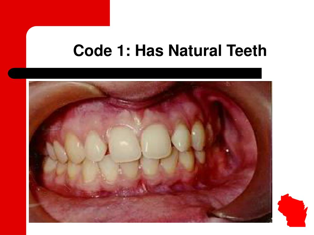 Code 1: Has Natural Teeth