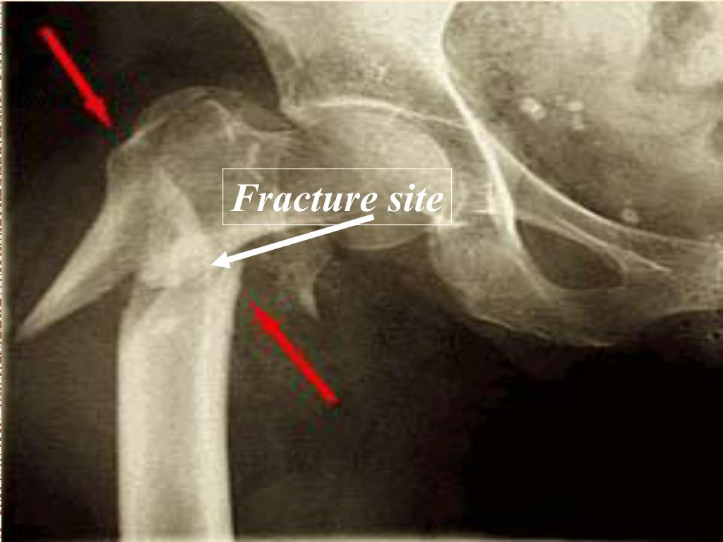 Fracture site
