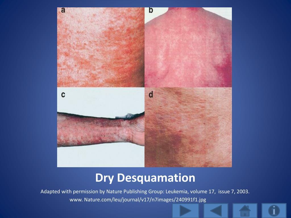 Dry Desquamation