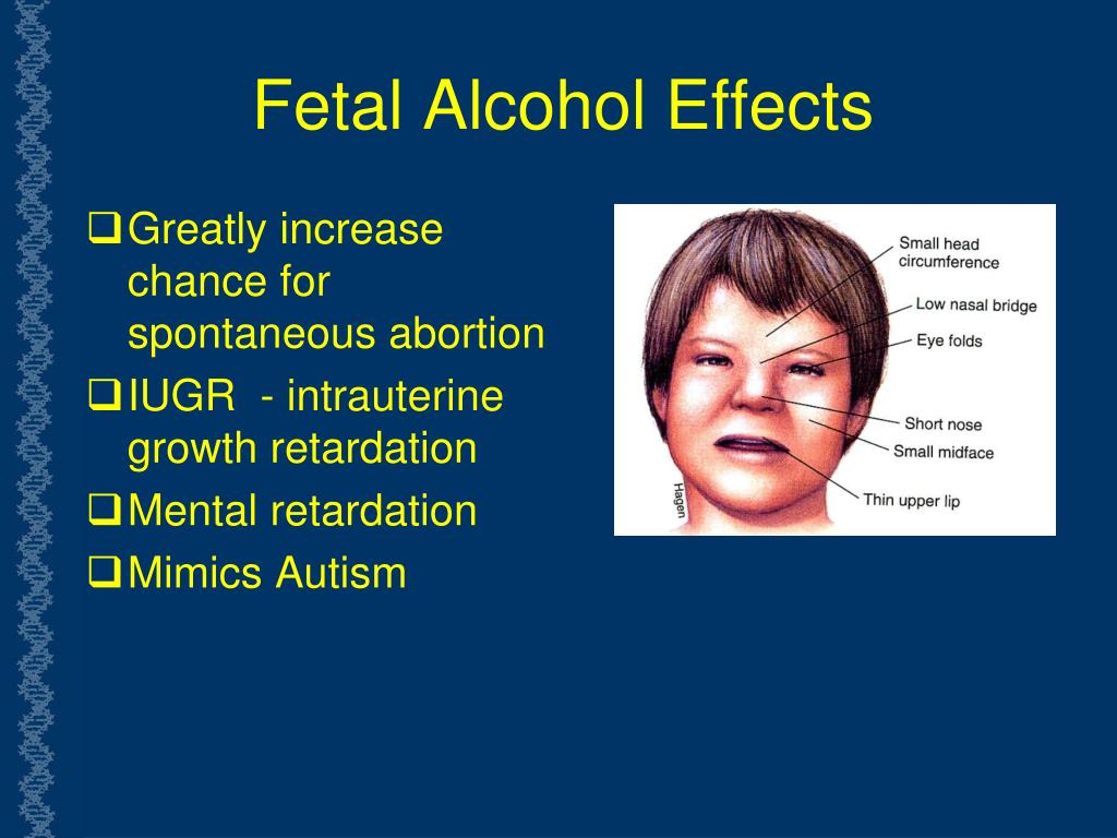 Fetal Alcohol Effects
