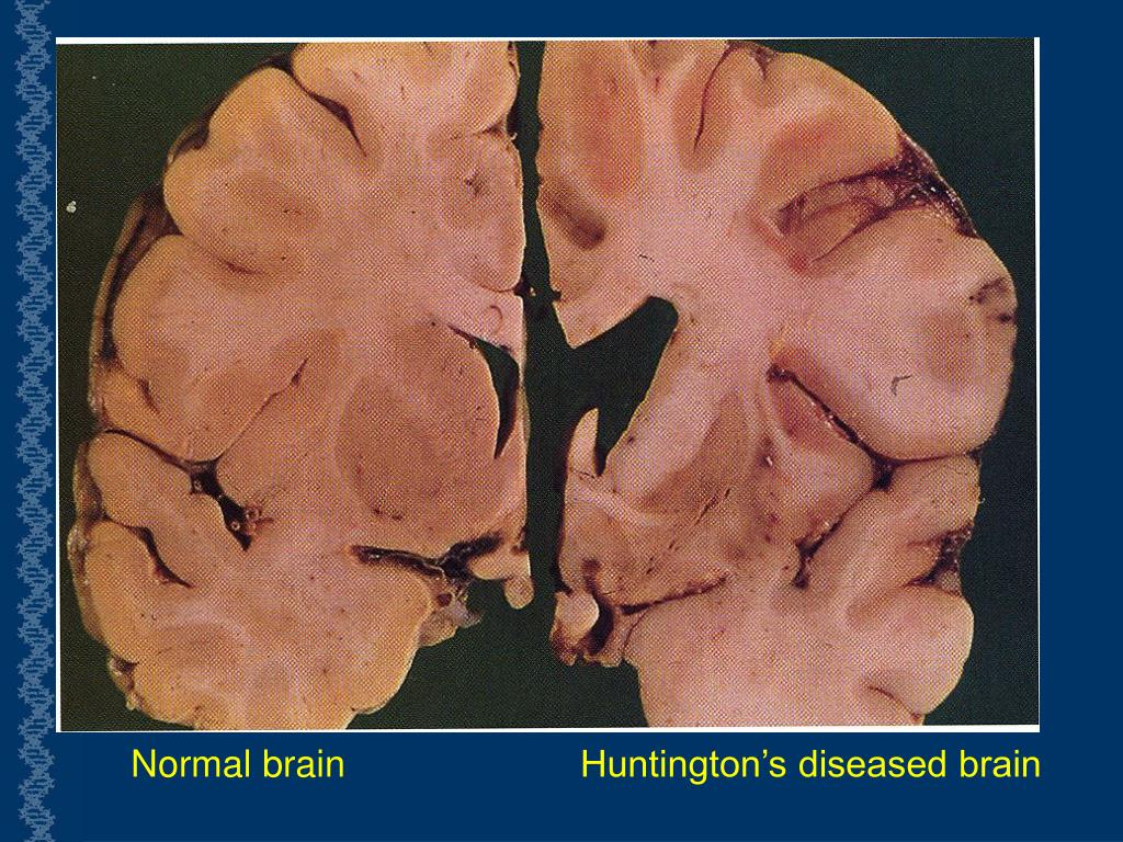 Normal brain 		Huntington's diseased brain