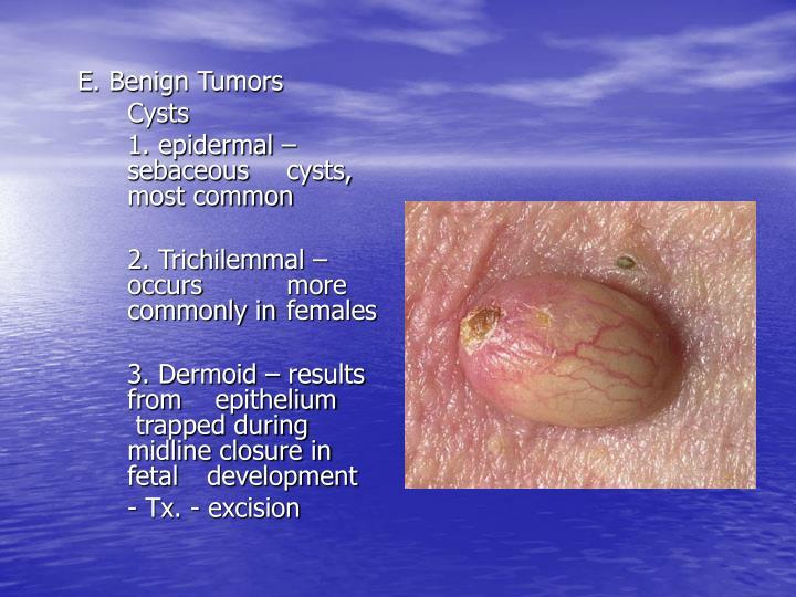 E. Benign Tumors