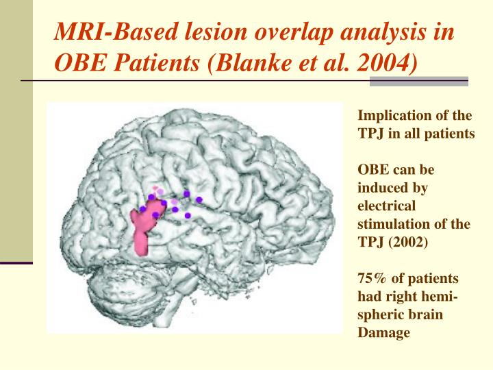 MRI-Based lesion overlap analysis in OBE Patients (Blanke et al. 2004)