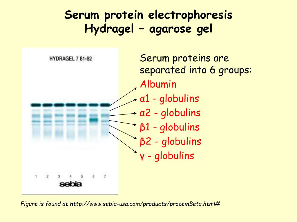 practical for electrophoresis of serum protein Protein electrophoresis in clinical diagnosis this text presents the use of protein electrophoresis of serum practical and a technical improvement.
