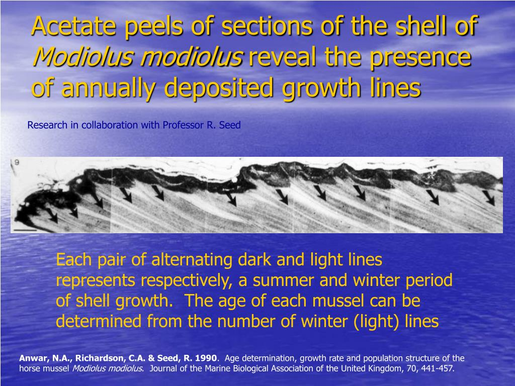 Acetate peels of sections of the shell of