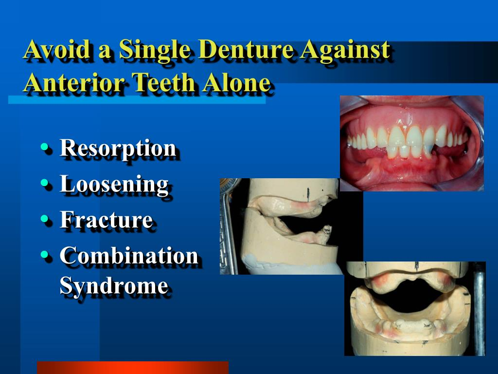 Avoid a Single Denture Against Anterior Teeth Alone