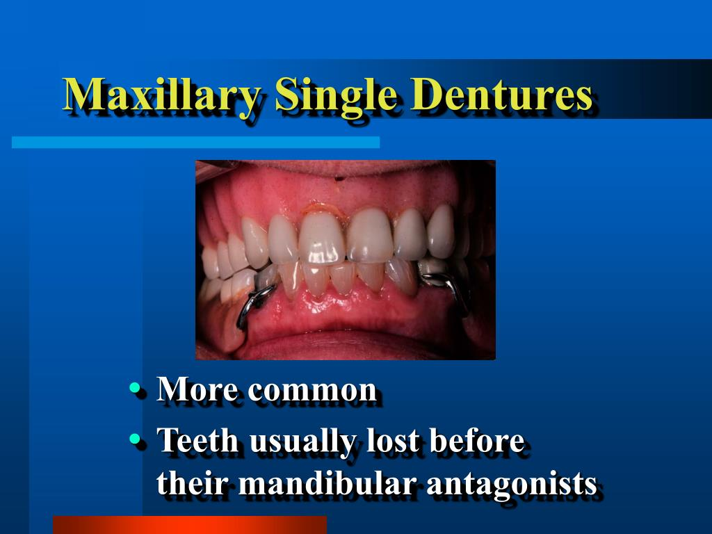 Maxillary Single Dentures