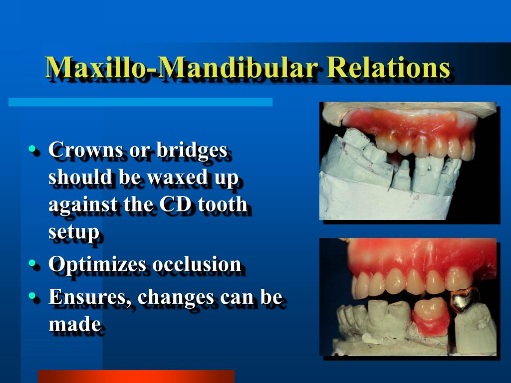 Maxillo-Mandibular Relations