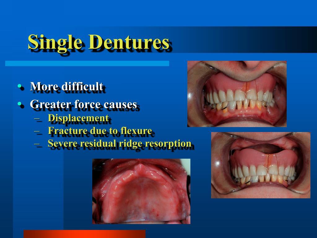 Single Dentures