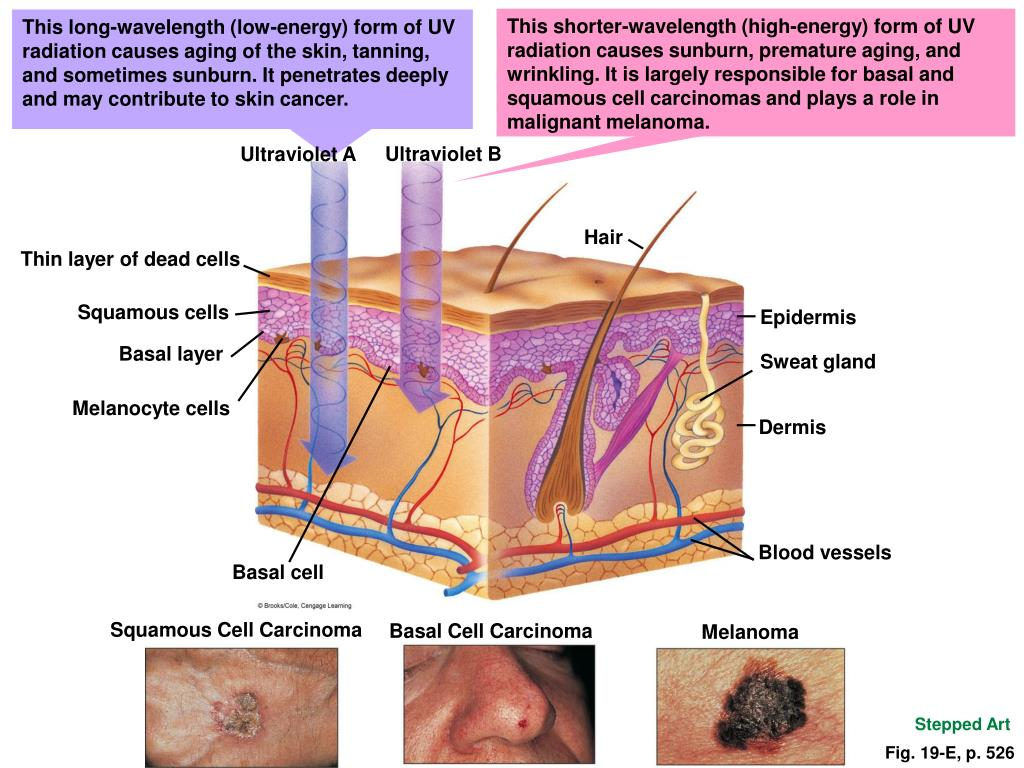 This shorter-wavelength (high-energy) form of UV radiation causes sunburn, premature aging, and wrinkling. It is largely responsible for basal and squamous cell carcinomas and plays a role in malignant melanoma.