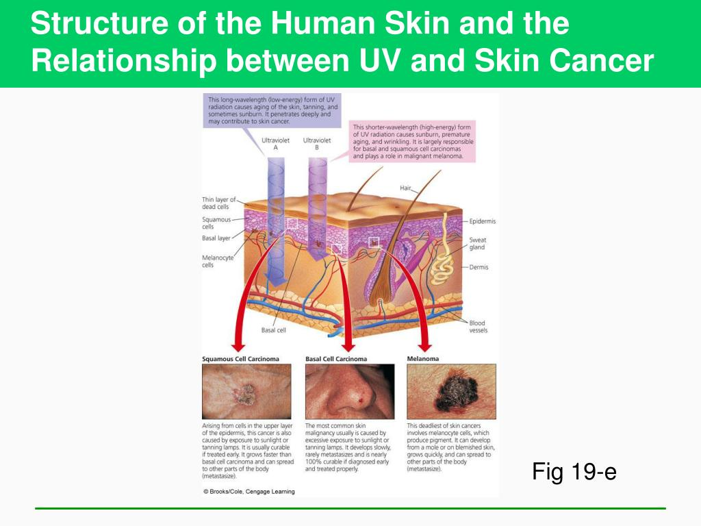 Structure of the Human Skin and the Relationship between UV and Skin Cancer