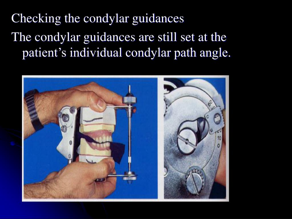 Checking the condylar guidances
