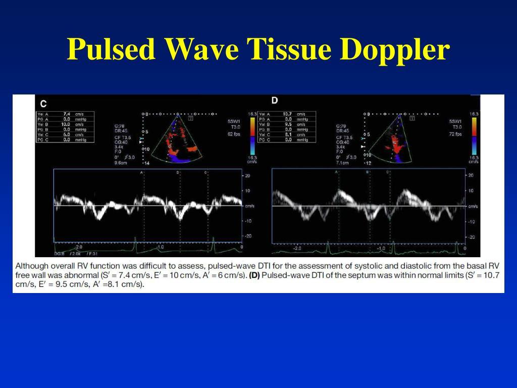 Pulsed Wave Tissue Doppler
