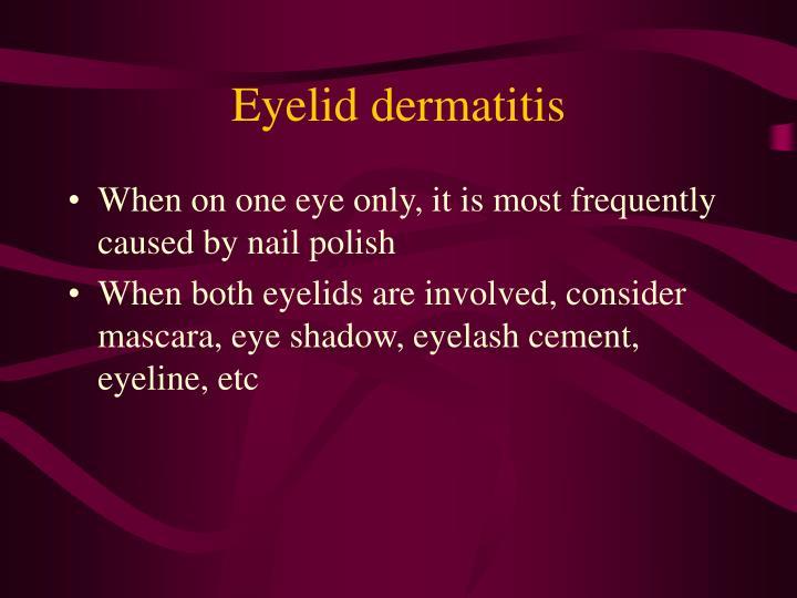 Eyelid dermatitis