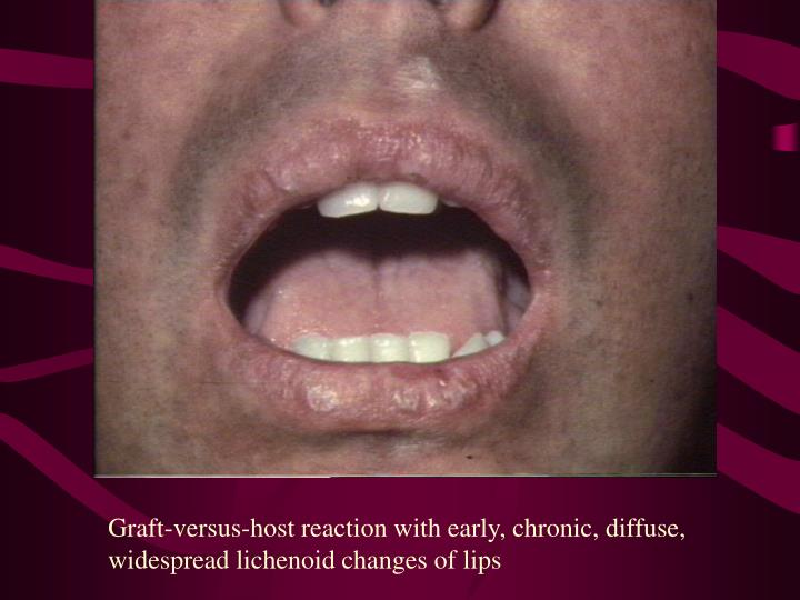 Graft-versus-host reaction with early, chronic, diffuse, widespread lichenoid changes of lips