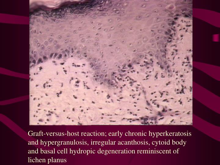 Graft-versus-host reaction; early chronic hyperkeratosis and hypergranulosis, irregular acanthosis, cytoid body and basal cell hydropic degeneration reminiscent of lichen planus