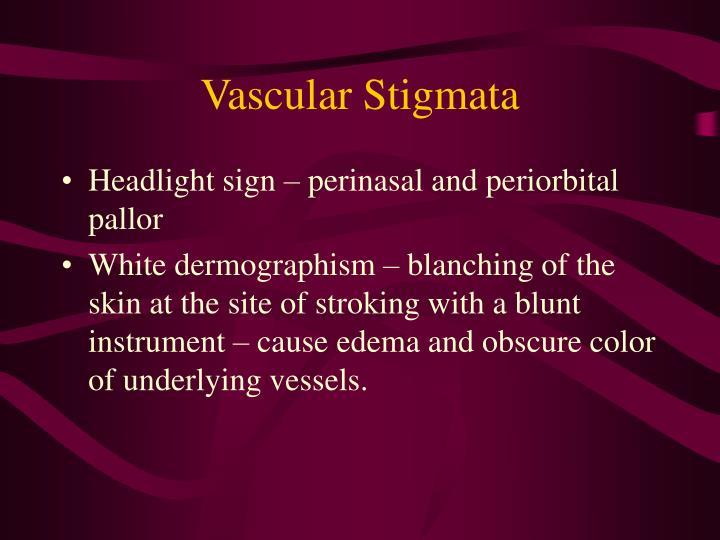 Vascular Stigmata