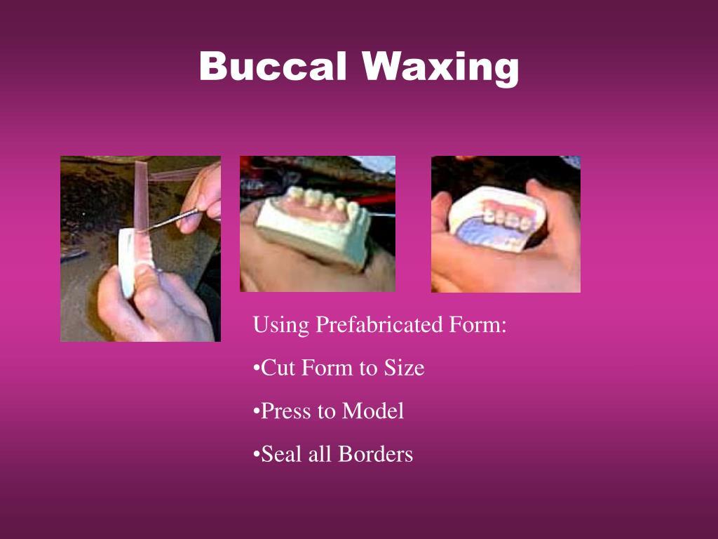 Buccal Waxing
