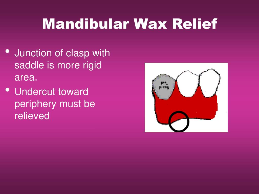 Mandibular Wax Relief