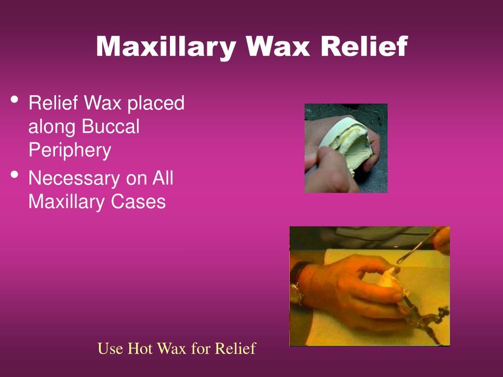 Maxillary Wax Relief