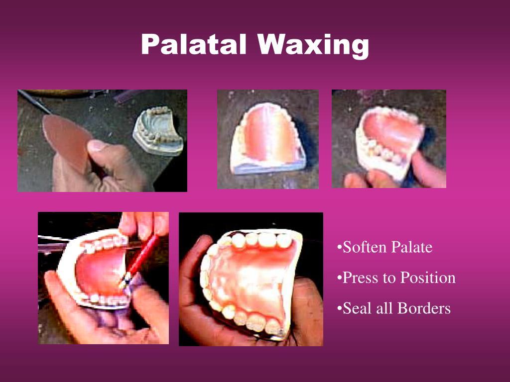 Palatal Waxing