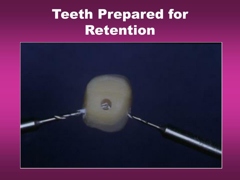 Teeth Prepared for Retention
