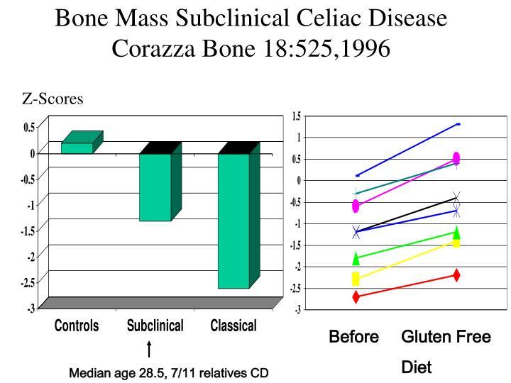 Bone Mass Subclinical Celiac Disease Corazza Bone 18:525,1996