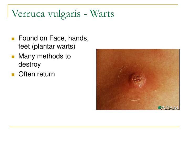 Verruca vulgaris - Warts