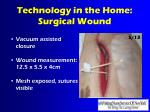 technology in the home surgical wound