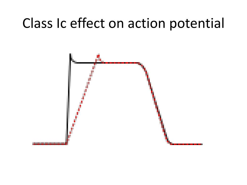 Class Ic effect on action potential