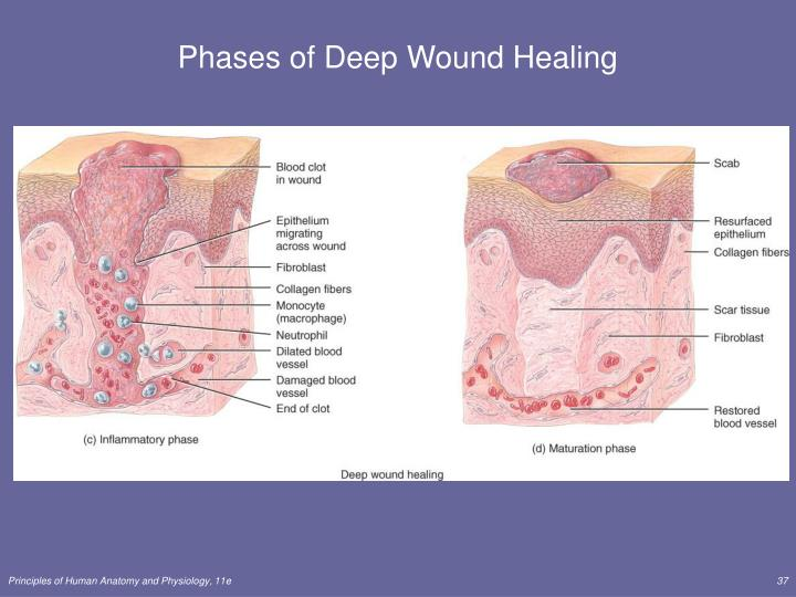 Phases of Deep Wound Healing