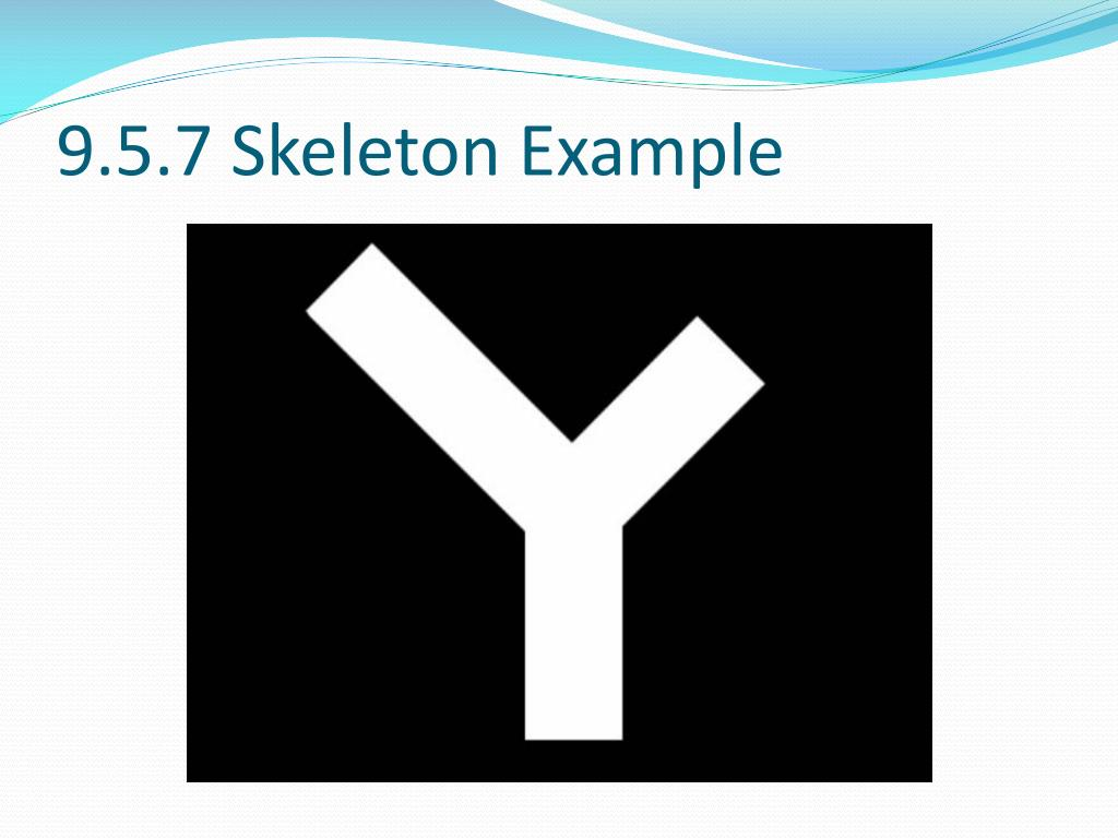 9.5.7 Skeleton Example
