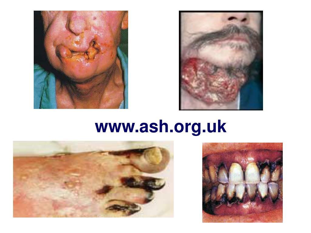 www.ash.org.uk